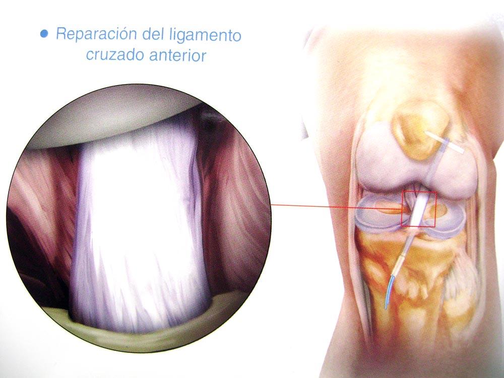 Artroscopia de Rodilla, Cadera, Tobillo, Hombro y pequeñas ...