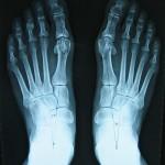 Radiografía pies